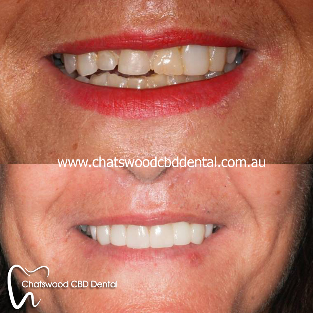 We are the best dentistry in Chatswood.