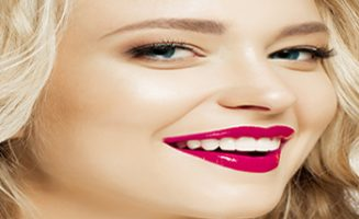 Dental Veneers in chatswood