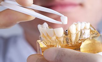 Dental Implant Chatswood