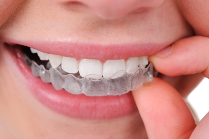 We provide Invisalign at a competitive price