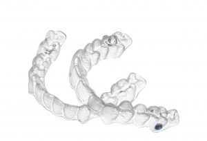 We provide Invisalign in Chatswood