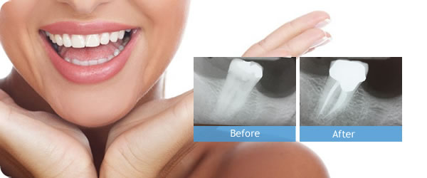 We are the best cosmetic dentistry in Chatswood