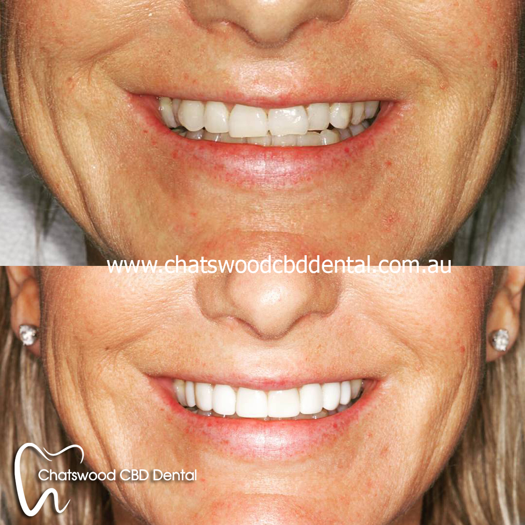 We have the best dentists in Chatswood.