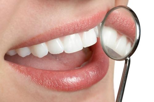 Dental filling at Chatswood