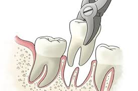 Tooth exaction Chatswood